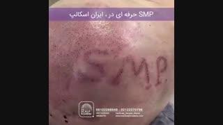 smp IRANSCALP