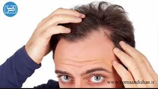 اختلال وسواس موکنی چیست و چه ویژگی هایی دارد؟