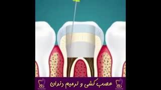 عصب کشی و ترمیم دندان   دکتر ندا هادی جراح و دندانپزشک زیبایی