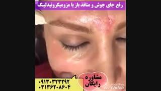 رفع جای جوش و منافذ باز با مزومیکرونیدل
