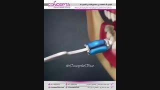 ترمیم دندان با استفاده از روش اینلی (اینله)  | کلینیک کانسپتا