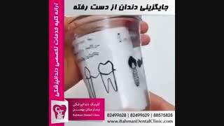 جایگزینی دندان از دست رفته | کیلینیک دندانپزشکی بیمارستان بهمن