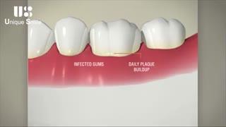 مسواک دندان | دکتر لیلا عطایی