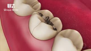 ترک های ریز روی دندان | دکتر لیلا عطایی