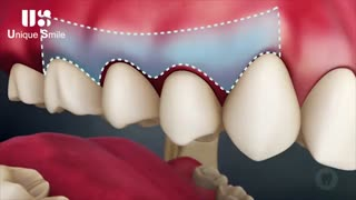 عوارض عدم رعایت بهداشت دهان و دندان | دکتر لیلا عطایی