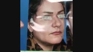 نمونه جراحی بینی با انحراف شدید