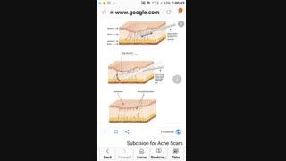 تکنیک ساب سیژن تراکشن .دکتر ابراهیم مقیمی www.em-md.com  09126864308