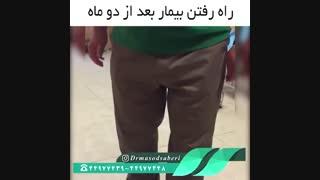 نتیجه تعویض مفصل زانو بعد از دو ماه | دکتر مسعود صابری متخصص ارتوپد