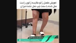 نتیجه عمل جراحی تعویض مفصل زانو | دکتر مسعود صابری متخصص ارتوپد