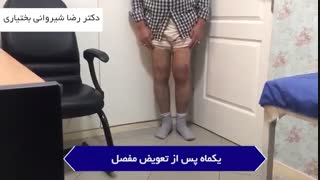 درمان آرتروز شدید و والگوس شدید زانوی  چپ