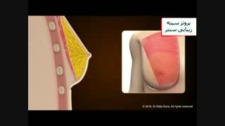 جراحی پروتز سینه - عمل پروتز سینه یا برجسته کردن سینه - زیبایی سنتر