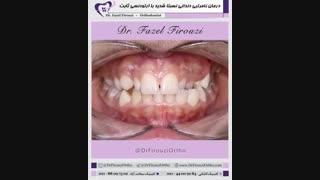 درمان ناهنجاری دندانی شدید | دکتر فیروزی