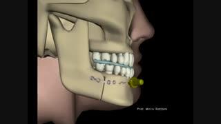 جراحی زیبایی فک و چانه - عمل زاویه سازی صورت  فک بالا و فک پایین - زیبایی سنتر