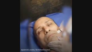 میکرودرم ابریست | دکتر مصطفی خدایاری