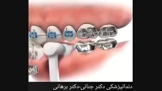این عوامل به ارتودنسی دندان آسیب می رسانند