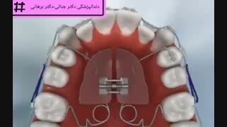 استفاده از پندولوم برای مرتب کردن دندان ها
