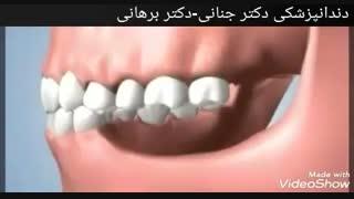 عوارض تحلیل لثه و از دست رفتن دندان ها
