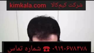 اسپری پرپشت کننده موی سر 09190678478 بهترین اسپری پرپشت کننده موی سرF&H اسپری موی سر