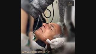 لیفت  صورت بدون جراحی  به وسیله هایفوتراپی