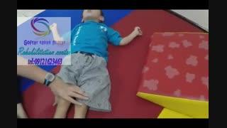 فلج مغزی در کودکان و بزرگسالان