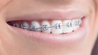 ارتودنسی دندان روکش شده | دکتر قریشی