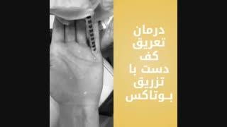 فیلم درمان تعریق کف دست 0