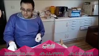 درمان زخم در کلینیک زخم پلاس