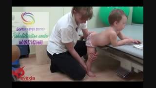 روشهای نوین توانبخشی اندام فوقانی در کودکان دچار فلج مغزی