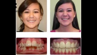 درمان نامرتبی دندان | دکتر لیلا عطایی