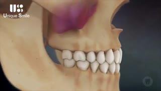 ایمپلنت دندان | دکتر لیلا عطایی