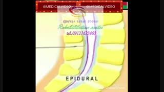 مراکزدرمان بیماری های حنجره در کرج،روش های گفتار درمانی |گفتار توان گستر البرز09121623463