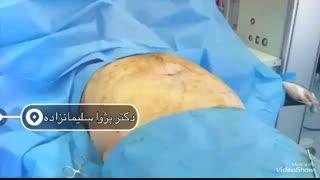 نتیجه لیپوماتیک شکم بعد از عمل