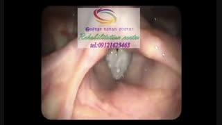 مجهزترین مراکز تصویربرداری حنجره در البرز|گفتارتوان گستر البرز09121623463