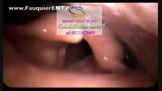 مجهزترین مراکز درمان حنجره در کرج|گفتار توان گستر البرز09121623463