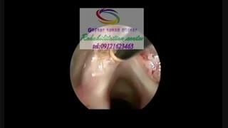 تخصصی ترین مراکز گفتار درمانی در غروب کرج|گفتارتوان گستر البرز09121623463