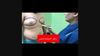 فیلم کوچک کردن سینه در مردان