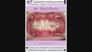 گسترش قوسی با دستگاه اکسپاندر | دکتر فاضل فیروزی