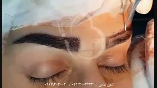 نحوه کاشت ابرو در کلینیک ایران بیوتی