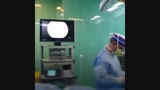 فیم جراحی  پارگی منیسک بعد از عمل