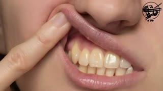 نسخه های طبیعی طب سنتی برای سفید کردن دندان