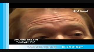 تزریق بوتاکس | فیلم تزریق بوتاکس | کلینیک پوست و مو مارال | شماره 3