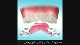 تامین فضا با استفاده از افزایش عرض و طول قوس دندانی
