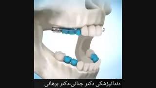 نحوه استفاده از دستگاه های متحرک ارتودنسی
