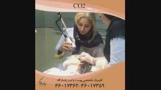 فیلم لیزر CO2