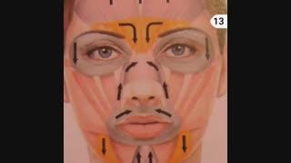 بوتاکس برای عضلات صورت .دکتر ابراهیم مقیمی