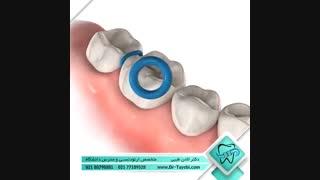 سپریتور (جداکننده) دندان | دکتر لادن طیبی