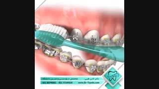 بهداشت دهان و دندان در ارتودنسی | دکتر طیبی