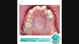 اصلاح بینظمی دندانی | دکتر لادن طیبی