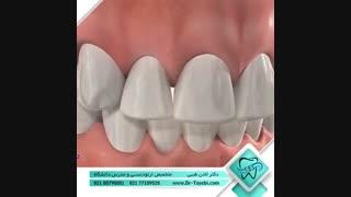استریپ کردن (تراش دندان)  | دکتر لادن طیبی