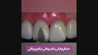 ترمیم و بازسازی واصلاح بد رنگی دندان سانترال
